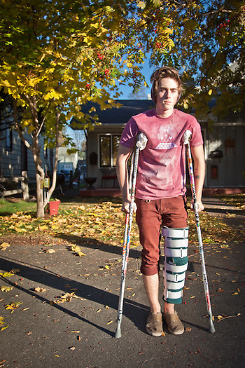 Mike Huff with his torn ACL, Anchorage (Clark James Mishler)