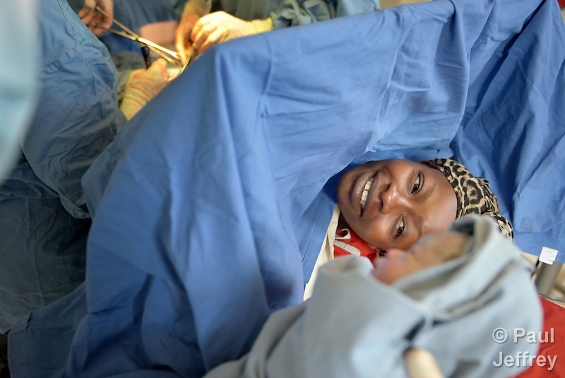 Fatima Nakuyioko takes a look at her baby, moments after it was born via Caesarean section in the St. Daniel Comboni Catholic Hospital in Wau, South Sudan. (Paul Jeffrey)