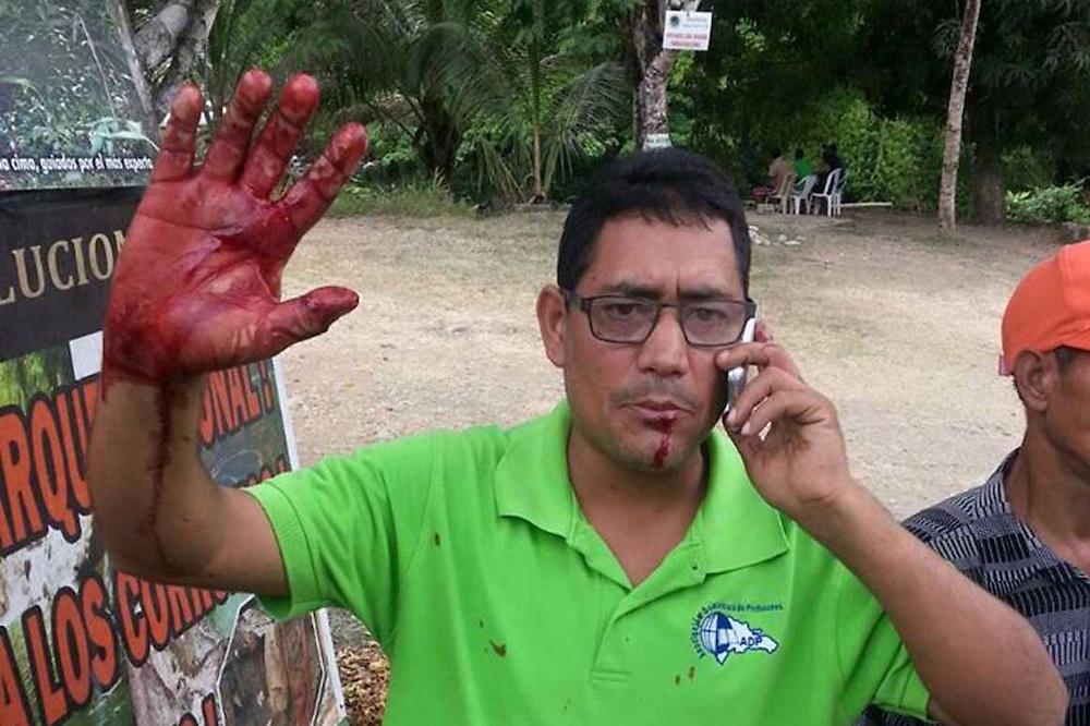 Los heridos fueron identificados como Sixto Gabín, presidente de la regional de la Asociación Dominicana de Profesores (ADP, sede San Francisco de Macorís; Juan de Dios Ortega, profesor técnico en deportes, de la Universidad Autónoma de Santo Domingo (UASD), y Juan Alberto Benzán, activista del Movimiento Patria para Todos