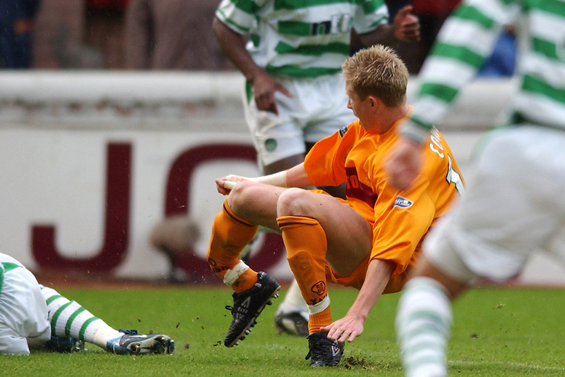 7TH MAY 2003, MOTHERWELL V CELTIC, FIR PARK, MOTHERWELL, DAVID COWAN OF MOTHERWELL SUFFERS A DOUBLE LEG BREAK AFTER TACKLE BY CELTIC'S PAUL LAMBERT, ROB CASEY PHOTOGRAPHY. (ROB CASEY/ROB CASEY PHOTOGRAPHY)