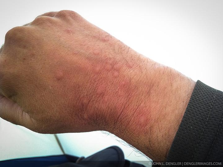 Mosquito bites on the back of the hand of John L. Dengler. Photo taken on a backpacking trip in Denali National Park and Preserve in Alaska (John L. Dengler / Dengler Images)