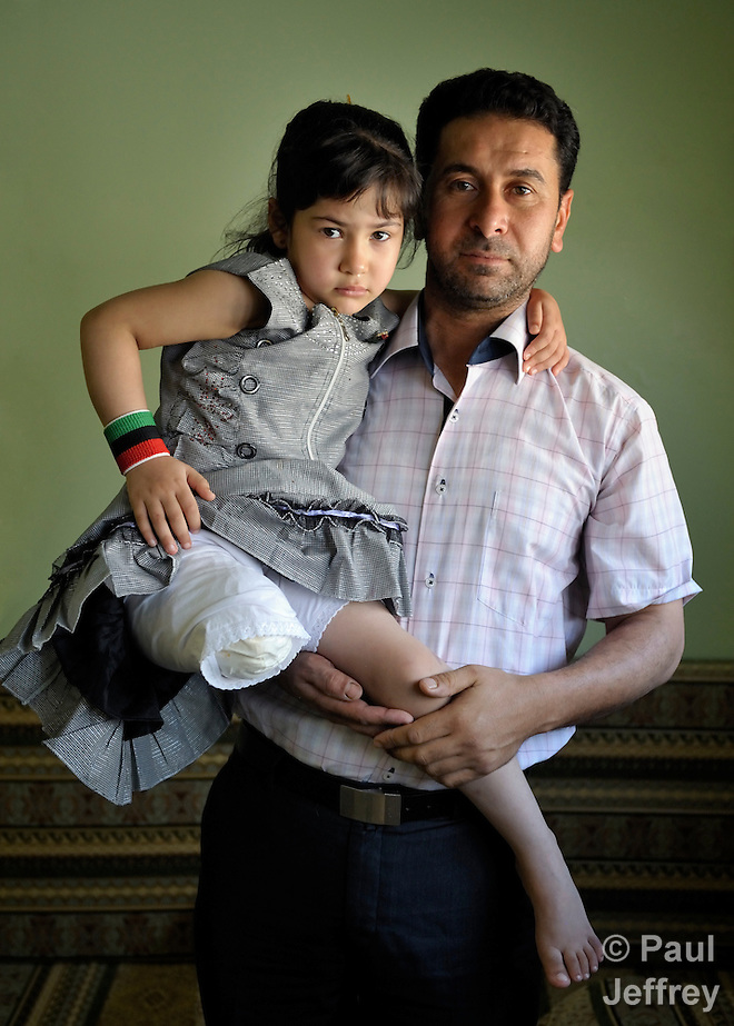 Mostfa Ashama holds his five-year old daughter Malake, who lost her leg when a Grad rocket fired by government forces slammed into her home in the rebel enclave of Misrata, Libya. The May 13 blast also killed a brother and sister.